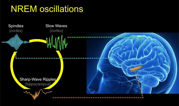Sleep spindles image brain and brain waves graph.